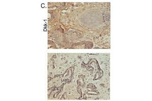 Immunohistochemistry (Paraffin-embedded Sections) (IHC (p)) image for anti-DKK1 antibody (Dickkopf Homolog 1 (Xenopus Laevis)) (AA 207-247) (ABIN678158)