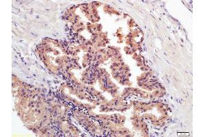 Immunohistochemistry (Paraffin-embedded Sections) (IHC (p)) image for anti-Prostate Specific Antigen (PSA) antibody (ABIN722976)
