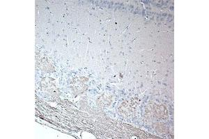 Image no. 1 for anti-Olfactory Marker Protein (OMP) antibody (ABIN350664)