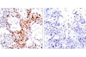 Immunohistochemistry (IHC) image for anti-ATF2 antibody (Activating Transcription Factor 2) (pThr69) (ABIN4281971)