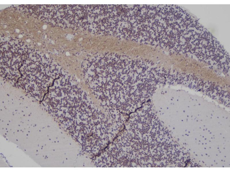 Image no. 2 for anti-Inositol Polyphosphate Phosphatase-Like 1 (INPPL1) (pTyr671) antibody (ABIN6269641)