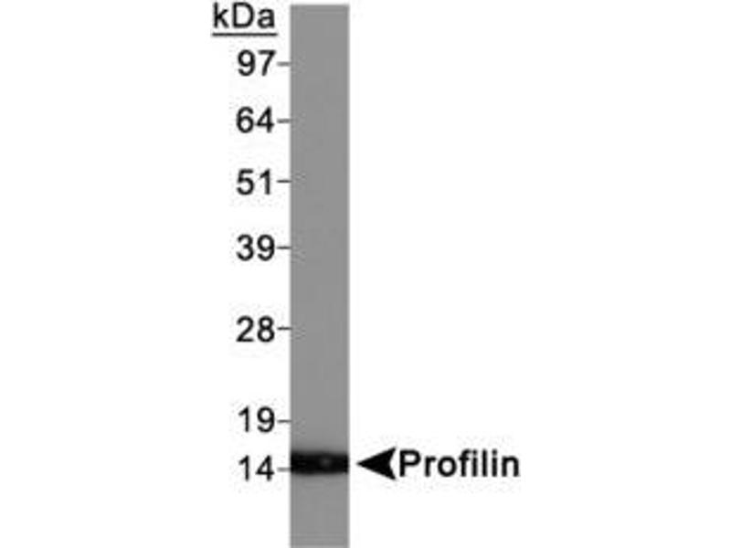 Western Blotting (WB) image for anti-Profilin 1 (PFN1) (AA 100-140), (C-Term) antibody (ABIN446701)