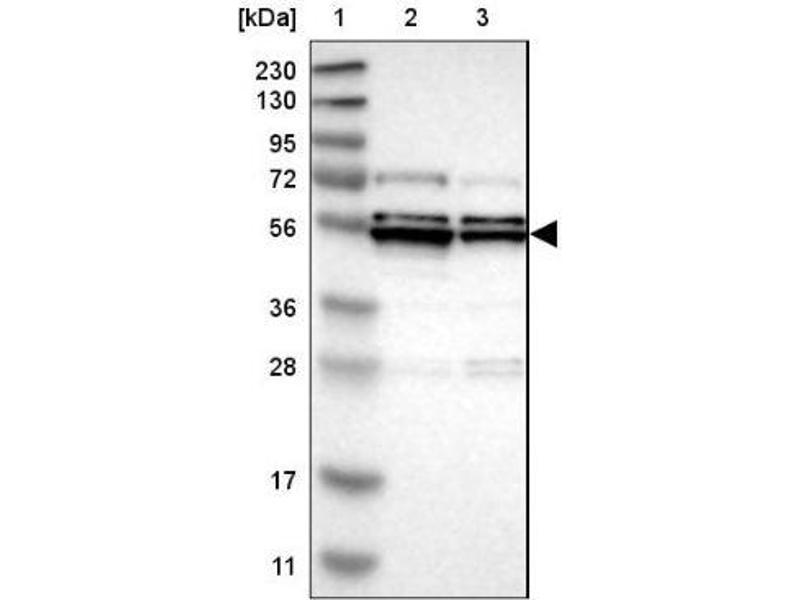 Western Blotting (WB) image for anti-Mitogen-Activated Protein Kinase-Activated Protein Kinase 5 (MAPKAPK5) antibody (ABIN4347179)