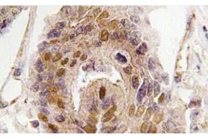 Immunohistochemistry (Paraffin-embedded Sections) (IHC (p)) image for anti-Death Inducer-Obliterator 1 (DIDO1) antibody (ABIN439156)