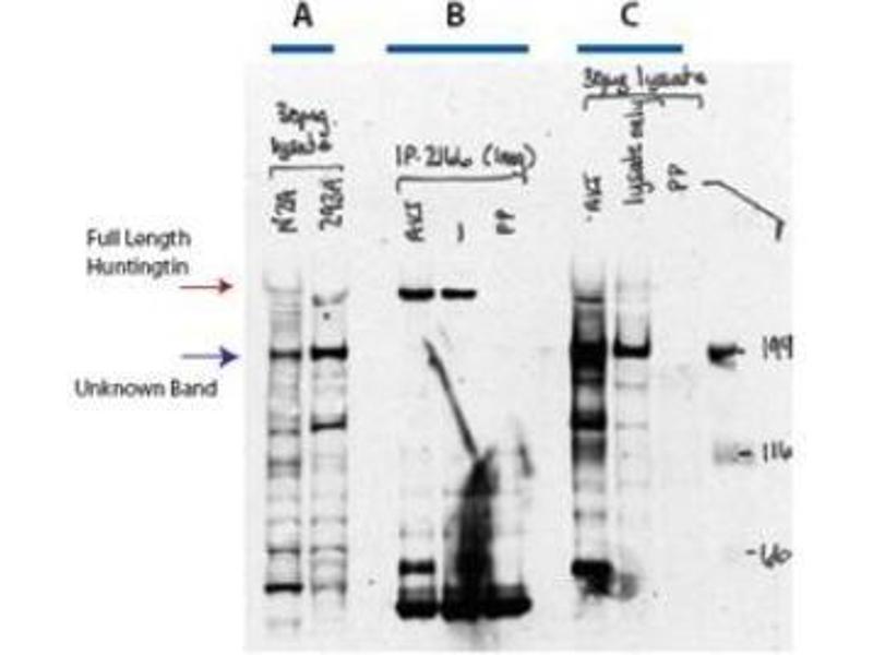 Image no. 1 for anti-Huntingtin (HTT) (AA 416-424), (pSer421) antibody (ABIN100604)