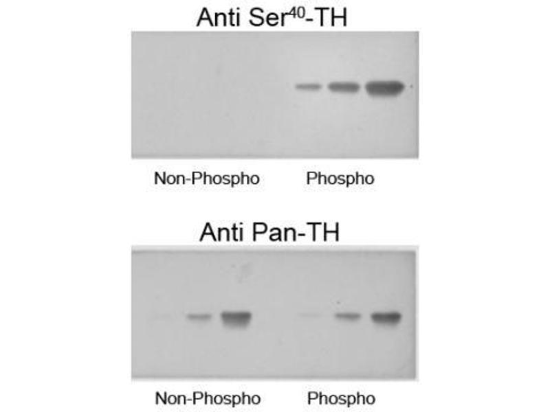 image for anti-Tyrosine Hydroxylase (TH) (pSer40) antibody (ABIN152518)