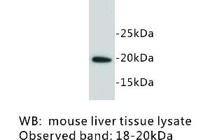 Image no. 1 for anti-Lymphocyte Antigen 6 Complex, Locus A (Ly6a) antibody (ABIN1112928)