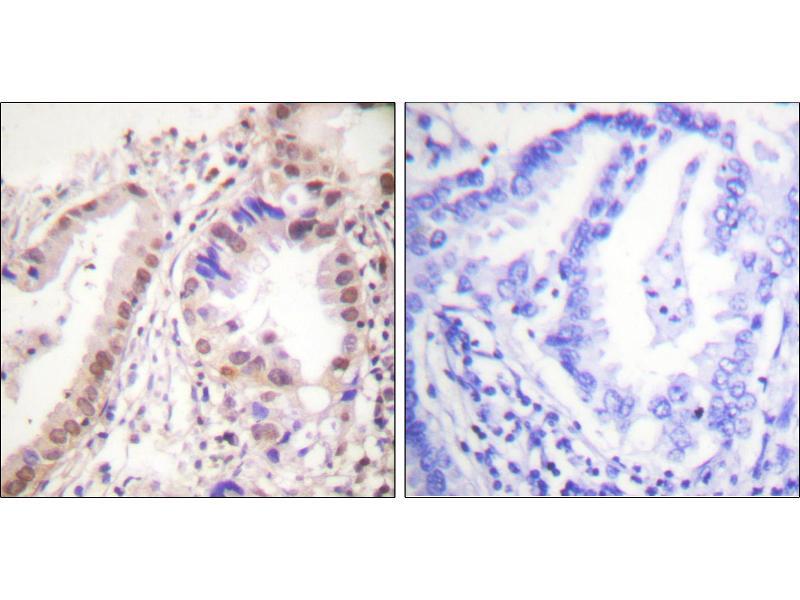 Image no. 1 for anti-Estrogen Receptor 1 (ESR1) (Tyr537) antibody (ABIN1576375)