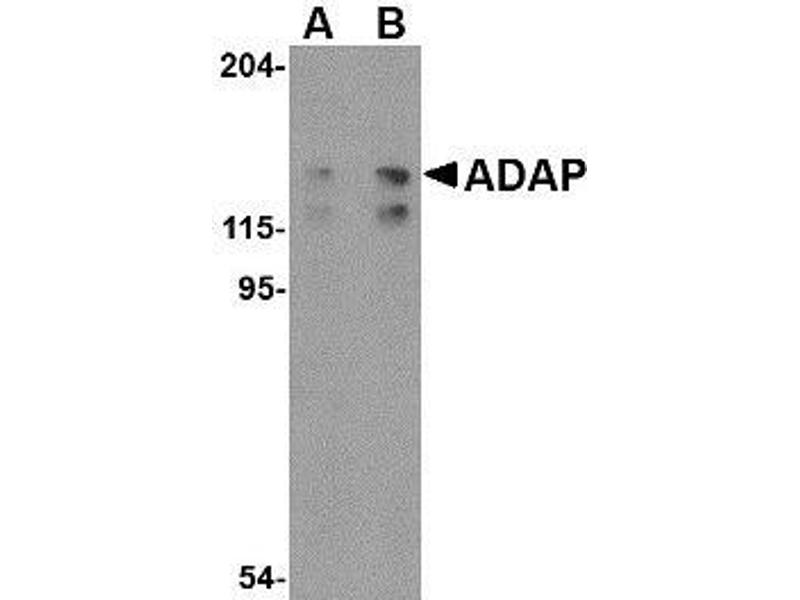 Western Blotting (WB) image for anti-FYB antibody (FYN-Binding Protein) (C-Term) (ABIN499215)