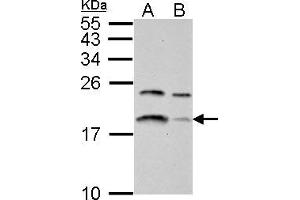 Image no. 1 for anti-Microtubule-Associated Protein 1 Light Chain 3 beta (MAP1LC3B) (full length) antibody (ABIN2854667)