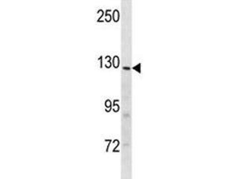 Western Blotting (WB) image for anti-Insulin Receptor-Related Receptor (INSRR) (AA 1228-1255) antibody (ABIN3029734)