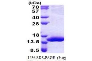 Image no. 1 for Chromosome 17 Open Reading Frame 37 (C17orf37) (AA 1-112) protein (His tag) (ABIN5853168)