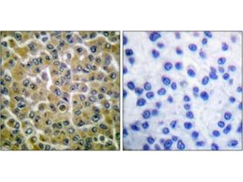 Immunohistochemistry (IHC) image for anti-Phospholipase C gamma 2 antibody (PLCG2) (pTyr753) (ABIN1531237)