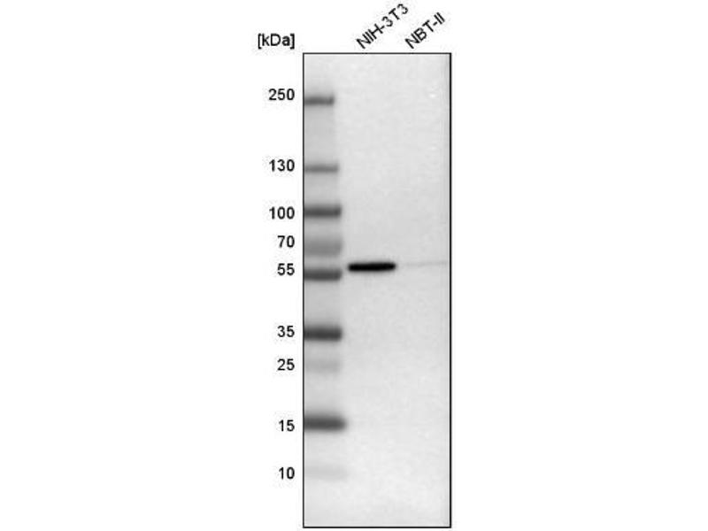 Western Blotting (WB) image for anti-FYN Oncogene Related To SRC, FGR, YES (FYN) antibody (ABIN4312914)