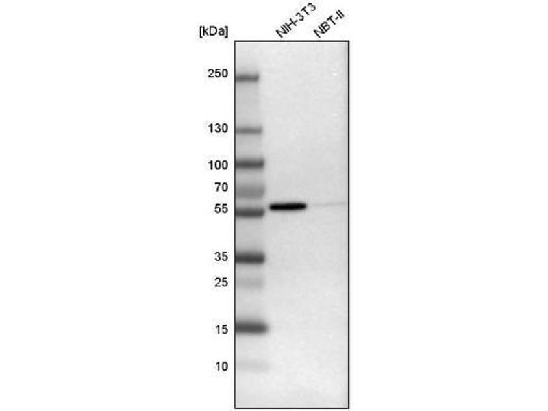 Western Blotting (WB) image for anti-FYN Oncogene Related To SRC, FGR, YES (FYN) antibody (ABIN4312914)
