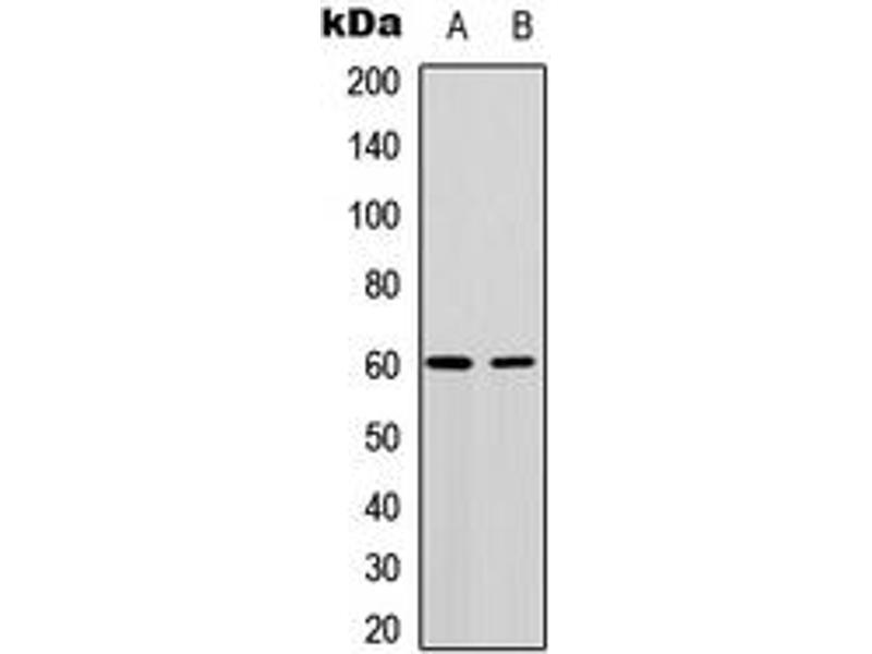 Western Blotting (WB) image for anti-AKT antibody (V-Akt Murine Thymoma Viral Oncogene Homolog 1) (Center) (ABIN2705430)