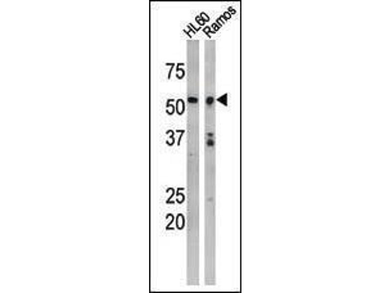 Western Blotting (WB) image for anti-p53 Antikörper (Tumor Protein P53) (pSer9) (ABIN1881624)
