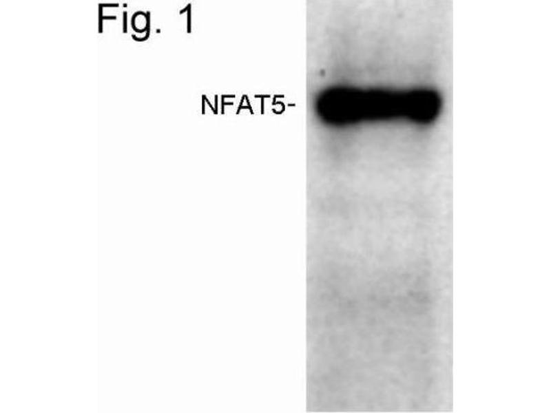 Western Blotting (WB) image for anti-Nuclear Factor of Activated T-Cells 5, Tonicity-Responsive (NFAT5) antibody (ABIN267152)