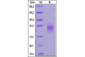 Image no. 2 for Killer Cell Lectin-Like Receptor Subfamily K, Member 1 (KLRK1) (AA 73-216) (Active) protein (His tag) (ABIN7013383)