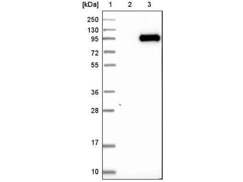 Western Blotting (WB) image for anti-Complement Component 1, S Subcomponent (C1S) antibody (ABIN4299881)