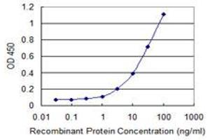 Image no. 1 for anti-Surfactant Protein C (SFTPC) (AA 1-197) antibody (ABIN520151)