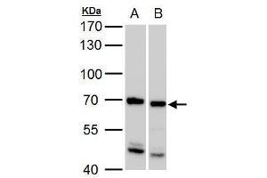 Image no. 2 for anti-Synovial Sarcoma, X Breakpoint 2 Interacting Protein (SSX2IP) (C-Term) antibody (ABIN2855933)