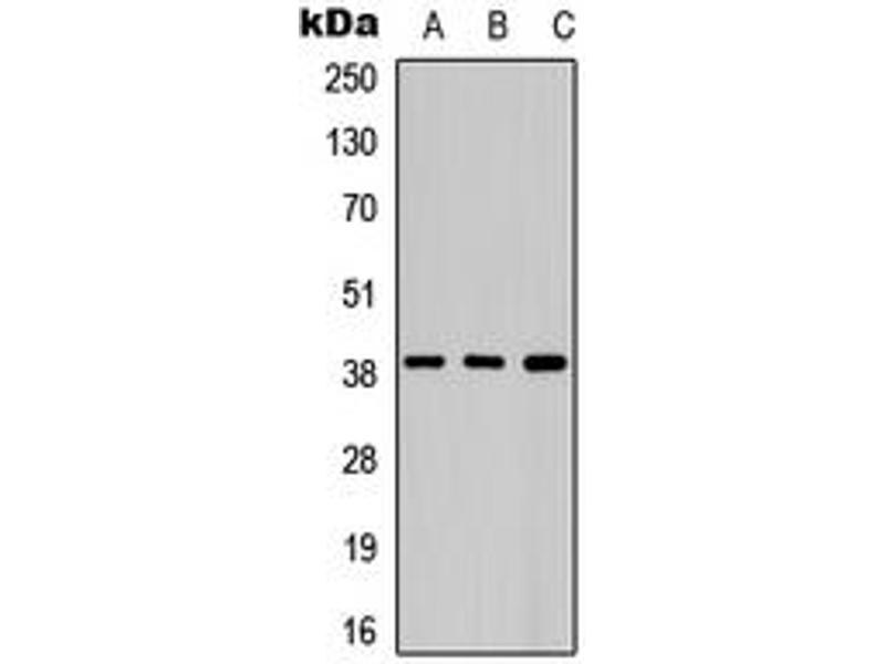 Western Blotting (WB) image for anti-Aurora Kinase B (AURKB) (N-Term) antibody (ABIN2972733)