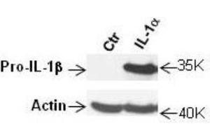 Western Blotting (WB) image for anti-Interleukin 1, beta (IL1B) (N-Term) antibody (ABIN269770)