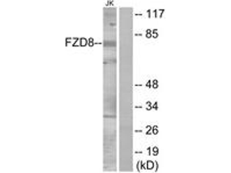 Western Blotting (WB) image for anti-FZD8 Antikörper (Frizzled Family Receptor 8) (ABIN1535615)