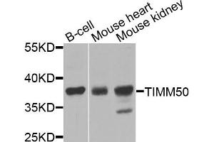 Image no. 1 for anti-Translocase of Inner Mitochondrial Membrane 50 Homolog (S. Cerevisiae) (TIMM50) antibody (ABIN4905423)