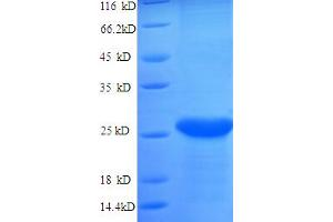 Image no. 1 for Catechol-O-Methyltransferase (COMT) (AA 52-271), (partial) protein (His tag) (ABIN4976307)