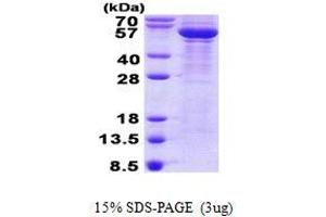 Image no. 1 for Tubulin, beta 3 (TUBB3) protein (His tag) (ABIN1098562)