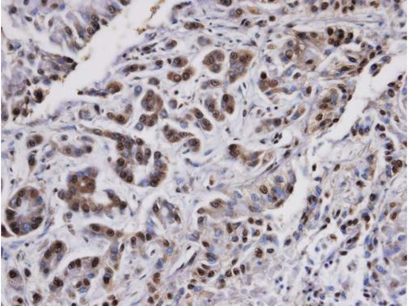 Immunohistochemistry (IHC) image for anti-Protein Phosphatase 2, Catalytic Subunit, alpha Isozyme (PPP2CA) (C-Term) antibody (ABIN2856333)