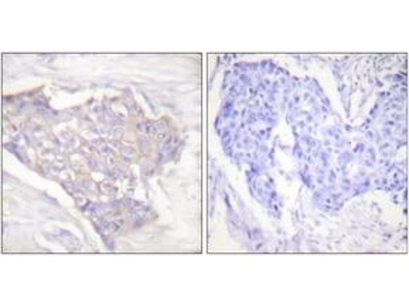 Immunohistochemistry (Paraffin-embedded Sections) (IHC (p)) image for anti-BIM antibody (BCL2-Like 11 (Apoptosis Facilitator)) (ABIN1533217)