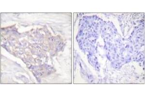 Immunohistochemistry (Paraffin-embedded Sections) (IHC (p)) image for anti-BCL2-Like 11 (Apoptosis Facilitator) (BCL2L11) (AA 1-50) antibody (ABIN1533217)
