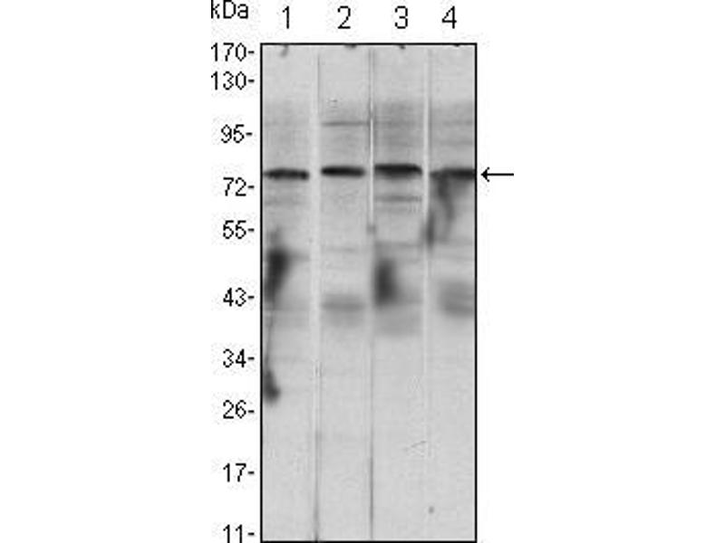 Western Blotting (WB) image for anti-CHUK antibody (conserved Helix-Loop-Helix Ubiquitous Kinase) (ABIN969056)