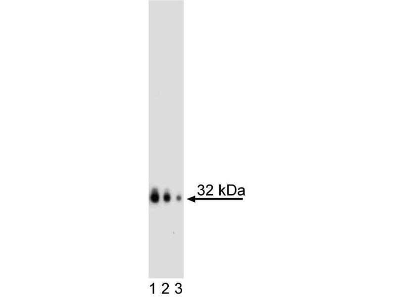 Western Blotting (WB) image for anti-Noggin (NOG) antibody (ABIN967662)