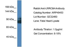 Image no. 1 for anti-Leucine Rich Repeat Containing 8 Family, Member A (LRRC8A) (Middle Region) antibody (ABIN2783753)