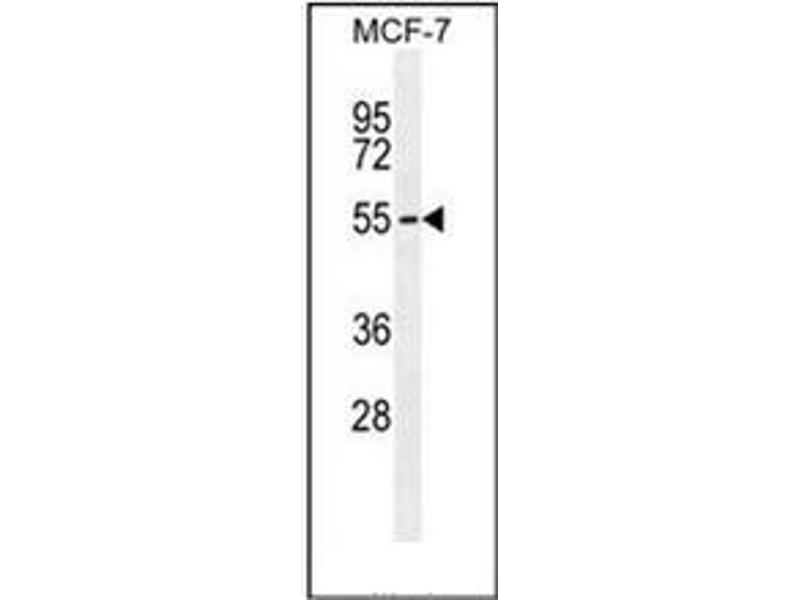 Western Blotting (WB) image for anti-Peptidase (Mitochondrial Processing) alpha (PMPCA) (AA 461-490), (C-Term) antibody (ABIN954220)