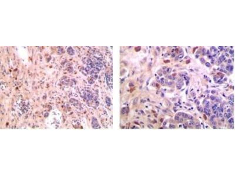 Immunohistochemistry (Paraffin-embedded Sections) (IHC (p)) image for anti-CD28 antibody (CD28) (ABIN4291207)