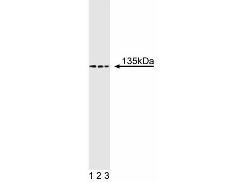 Western Blotting (WB) image for anti-TAF4 RNA Polymerase II, TATA Box Binding Protein (TBP)-Associated Factor, 135kDa (TAF4) (AA 454-565) antibody (ABIN968728)