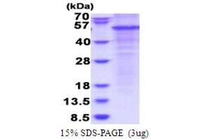 Image no. 1 for Complement Factor P (CFP) (AA 28-469) protein (His tag) (ABIN5853789)
