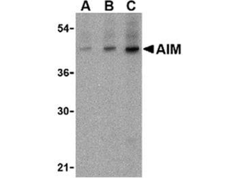 image for anti-CD5 Molecule-Like (CD5L) (N-Term) antibody (ABIN318737)