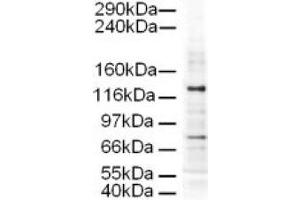 image for anti-AP3D1 antibody (Adaptor-Related Protein Complex 3, delta 1 Subunit) (AA 686-698) (ABIN401171)