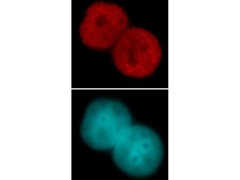 Immunofluorescence (IF) image for anti-Histone 3 (H3) (acLys23) antibody (ABIN4889650)