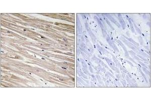Image no. 1 for anti-phosphoprotein Enriched in Astrocytes 15 (PEA15) (AA 70-119), (pSer104) antibody (ABIN1531459)