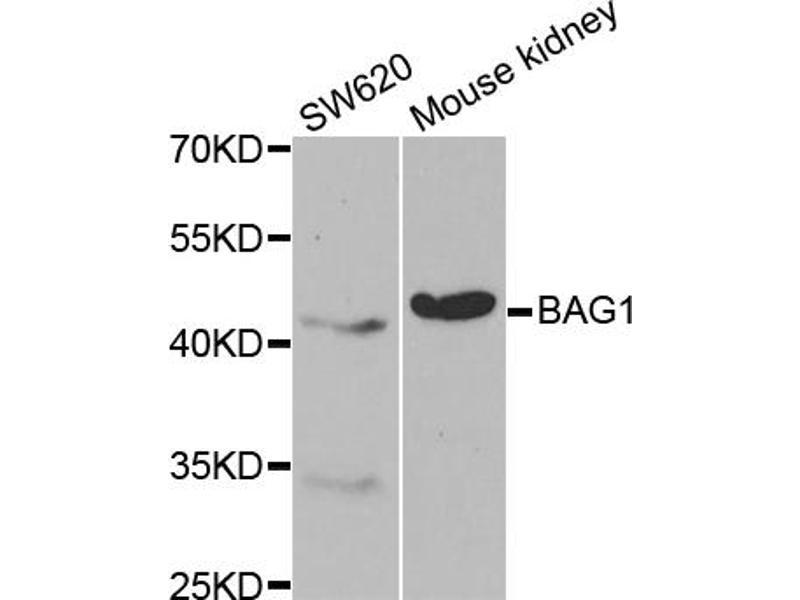 Image no. 1 for anti-BCL2-Associated Athanogene (BAG1) antibody (ABIN6567053)