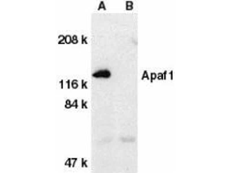 Western Blotting (WB) image for anti-APAF1 antibody (Apoptotic Peptidase Activating Factor 1) (C-Term) (ABIN499289)