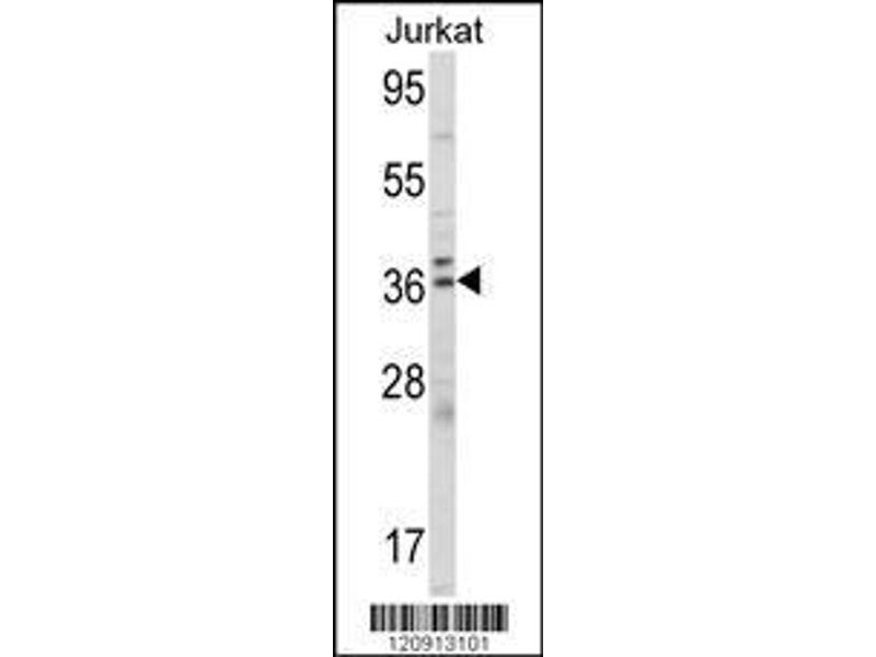 Western Blotting (WB) image for anti-Aminolevulinate Dehydratase (ALAD) (AA 244-272), (C-Term) antibody (ABIN390809)