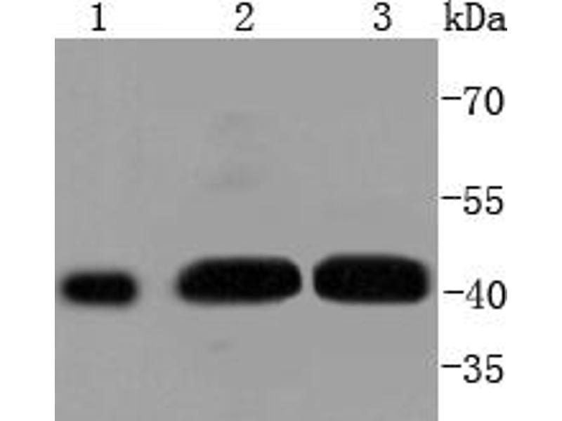 Western Blotting (WB) image for anti-Mitogen-Activated Protein Kinase Kinase 1 (MAP2K1) (pSer298) antibody (ABIN5557395)